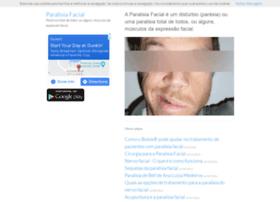 paralisiafacial.com