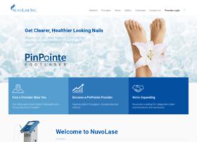 pinpointefootlaser.com