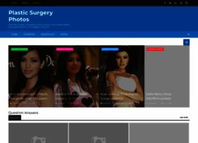 plasticsurgeryphotos.blogspot.com