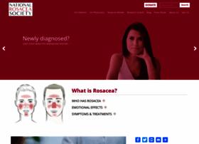 rosacea.org