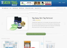 safe-skin-tag-removal.com