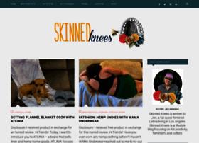 skinnedknees.net