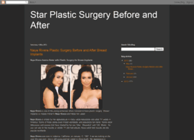 starplasticsurgery.blogspot.ie