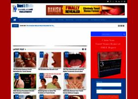 tonsilstones-treatment.blogspot.com