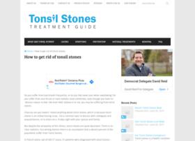 tonsilstonesadvisor.com