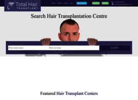 totalhairtransplant.com