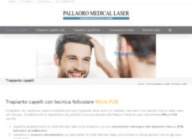 trapianto-capelli.pallaoro.com