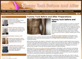 tummytuckreview.net