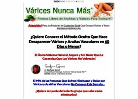 varicesnuncamas.com
