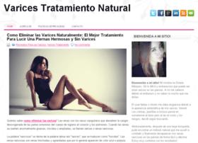 varicestratamiento.info