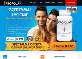 wypadaniewlosow.com.pl