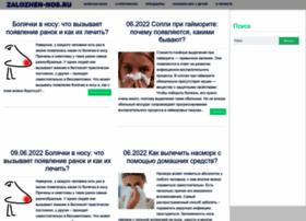 zalozhen-nos.ru